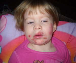 Baby Impetigo Pictures Infant Todler And Babyies