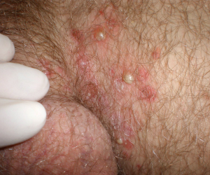 skin infection