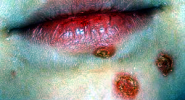 impetigo on lips