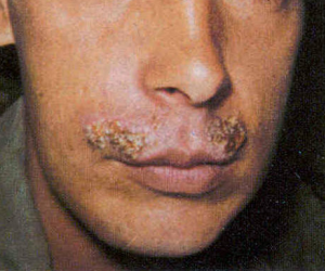 impetigo lips #10
